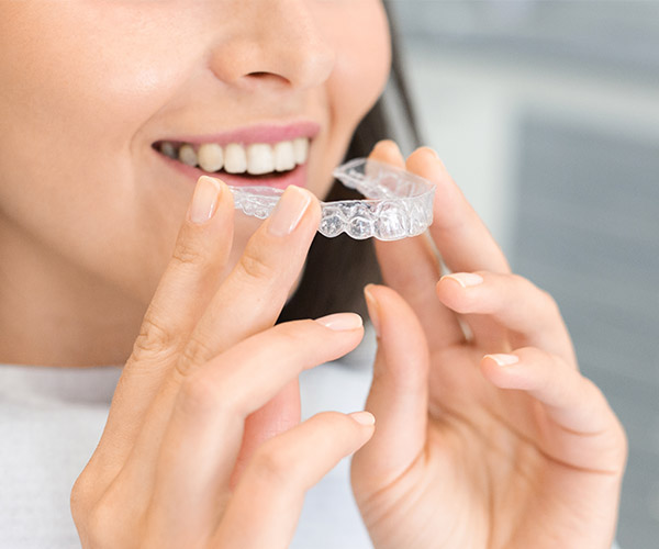 矯正後牙縫變大如何補救?二大狀況、三解方關閉黑三角